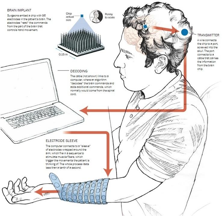 Новая технология позволила парализованному человеку управлять собственной рукой