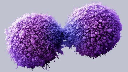 Невезение — более вероятная причина рака, нежели образ жизни или гены