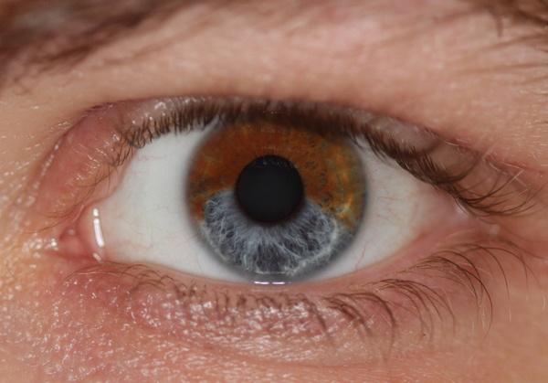 Скоро любой желающий сможет сделать свои глаза голубыми - 1