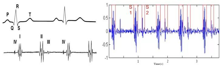 Как умные часы, спортивные трекеры и прочие гаджеты измеряют пульс? Часть 2 - 13