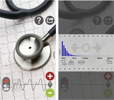 Как умные часы, спортивные трекеры и прочие гаджеты измеряют пульс? Часть 2 - 15