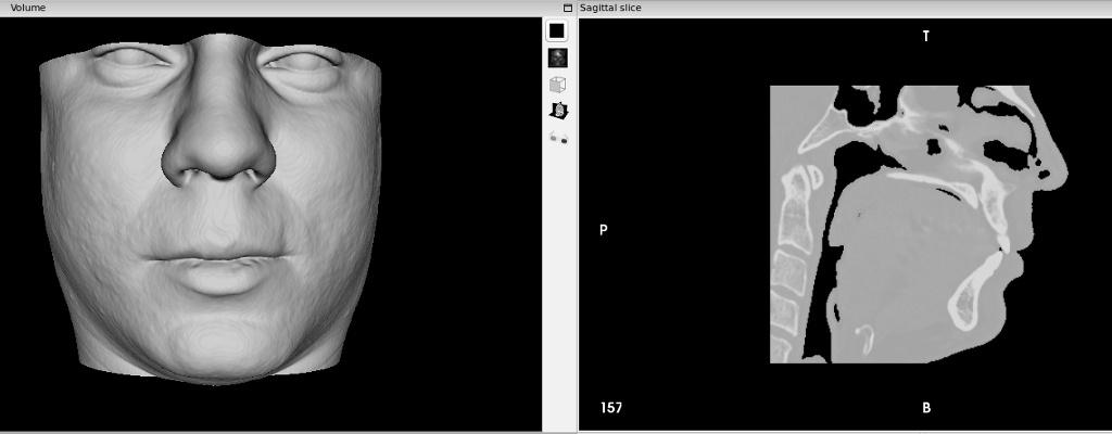 Как я пытался лечиться по ДМС, а получил 3D модель головы и чуть больше здоровья за свои деньги - 1