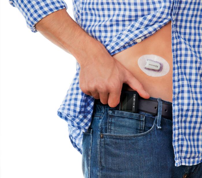 Google создаст миниатюрный глюкометр для перманентного мониторинга уровня сахара в крови пациента - 2
