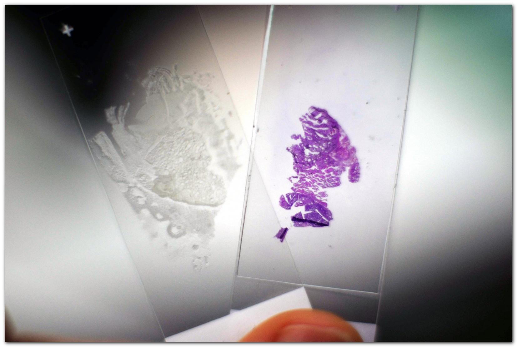 «Диагностировать рак поможет лазер», или Как устроен лазерный флуоресцентный гиперспектральный микроскоп - 18