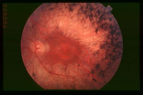 Генетики при помощи CRISPR убрали дефектный ген, приводящий к дегенерации сетчатки глаз - 1