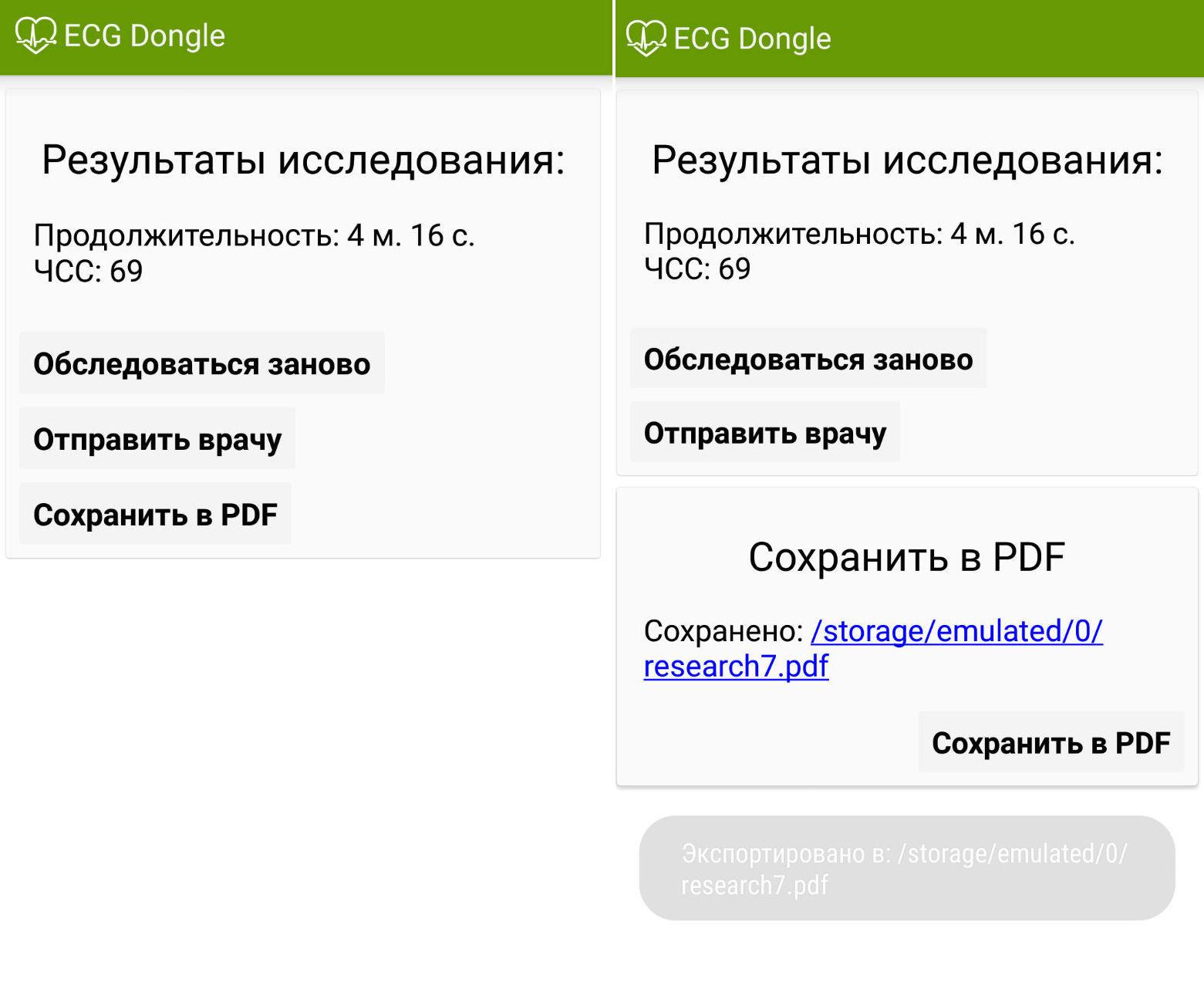 ЭКГ на дому, или сделано в России: отечественные разработчики представили кардиофлешку - 6