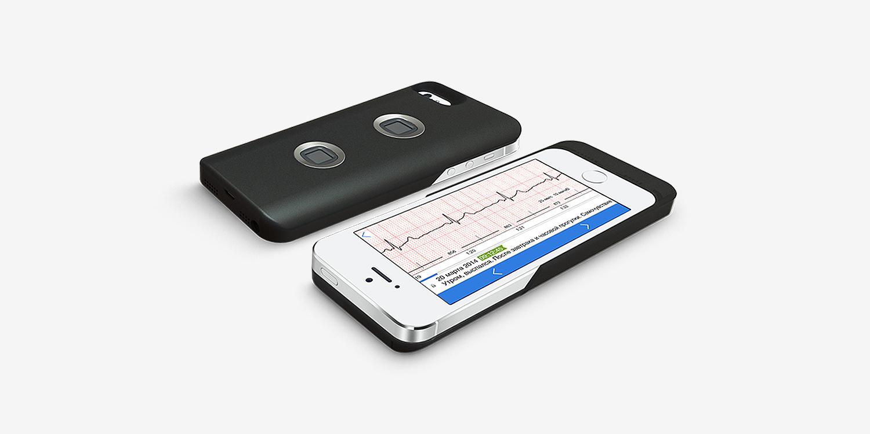 Машинное обучение и медицина: Как выявление курильщика по кардиограмме поможет в диагностике болезней - 5
