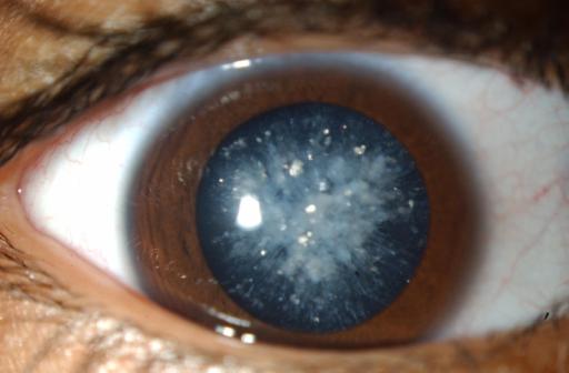 С катарактой у детей научились бороться при помощи стволовых клеток - 1