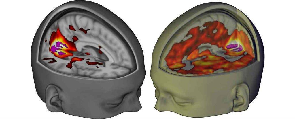 Сканы мозга показали, как ЛСД действует на сознание - 1