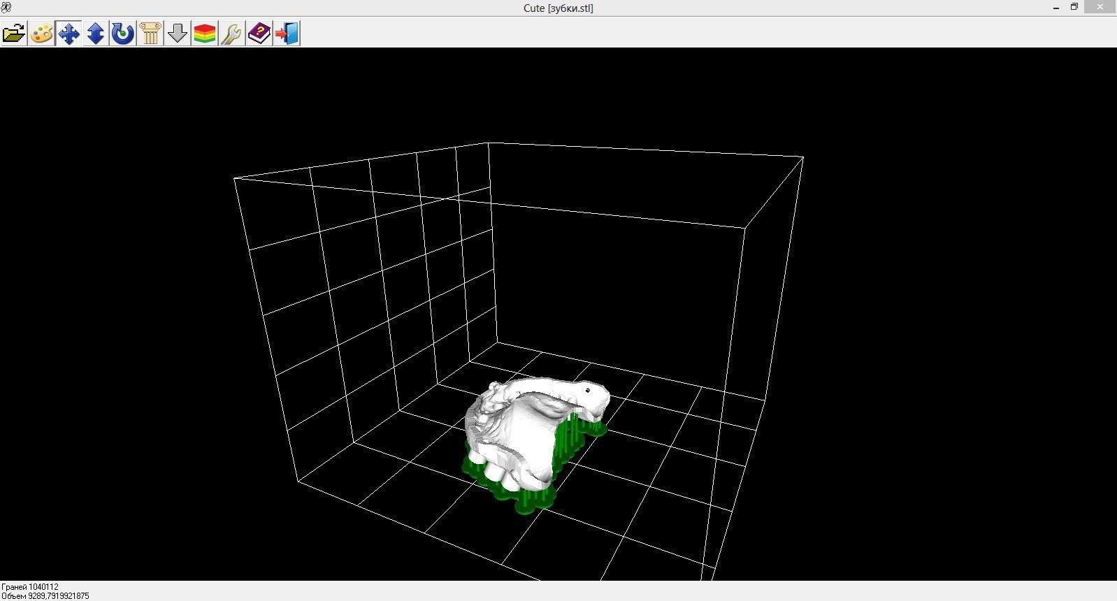 Применение 3D принтера в стоматологии - 3