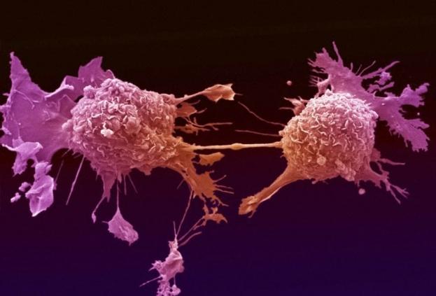 Искусственный интеллект помогает диагностировать рак - 1