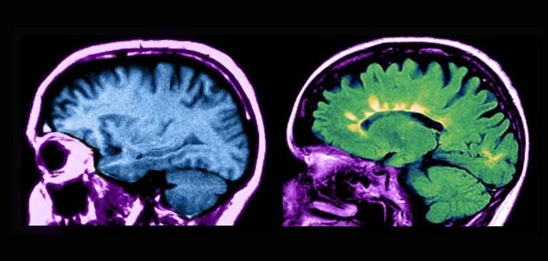 Переустановка иммунной системы. Радикальный новый метод лечения рассеянного склероза доказал свою эффективность - 1