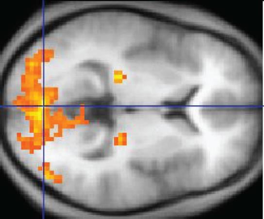 Баги в программном обеспечении для МРТ-сканеров ставят под сомнение 40 000 научных исследований - 2
