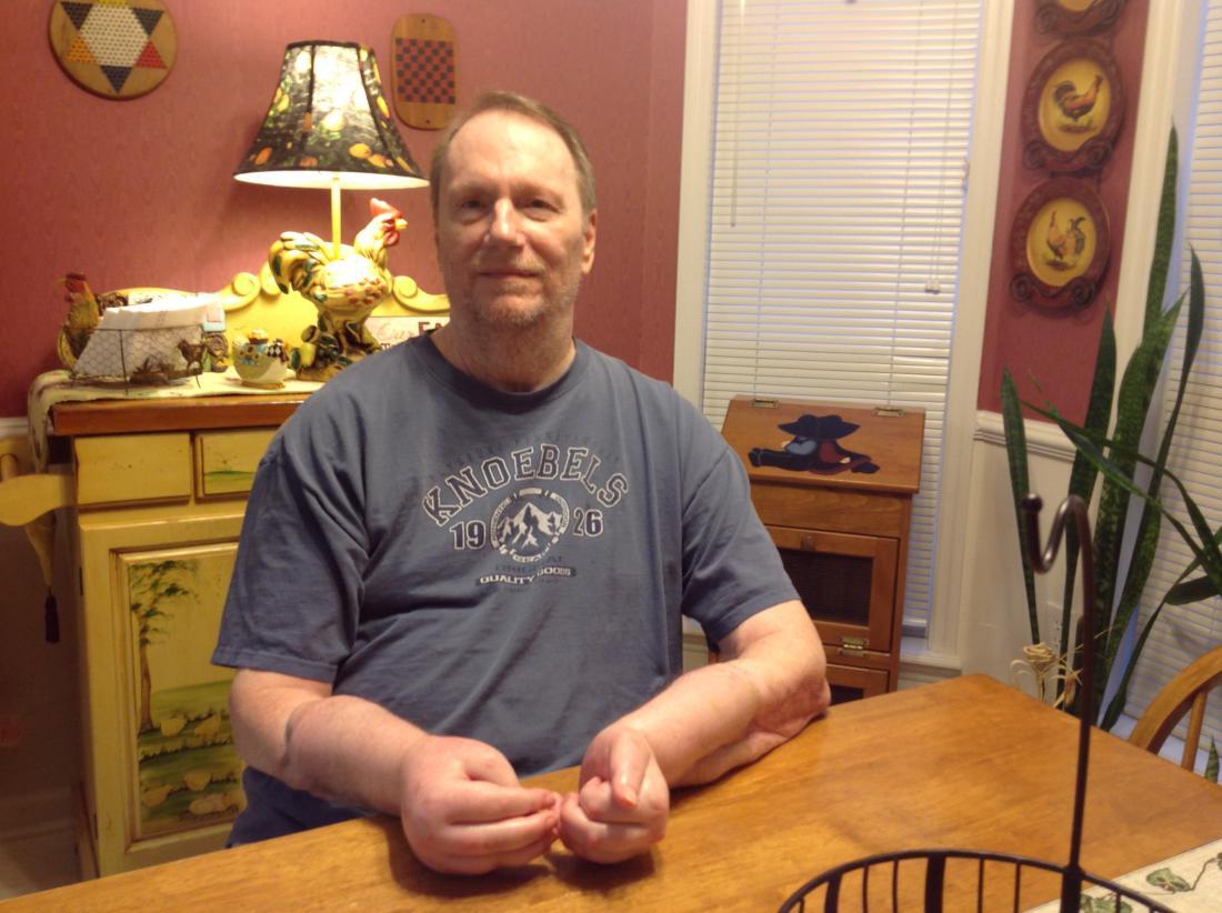 Первый в США пациент, которому трансплантировали обе руки, хочет от них избавиться - 2