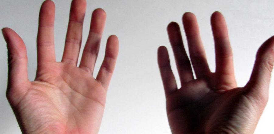 Первый в США пациент, которому трансплантировали обе руки, хочет от них избавиться - 1