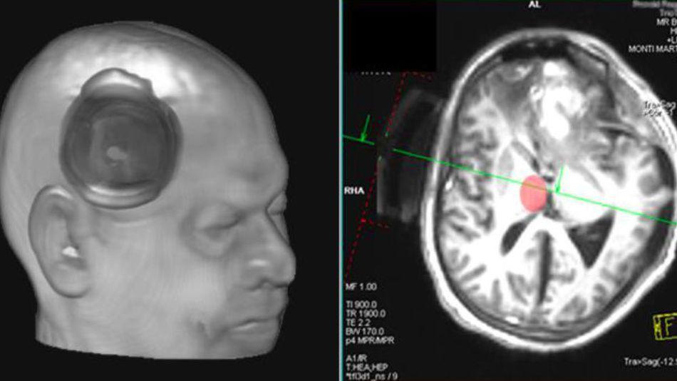Триггер для сознания? 25-летнего парня вывели из комы, фокусируя ультразвук на небольшом участке в центре мозга - 3
