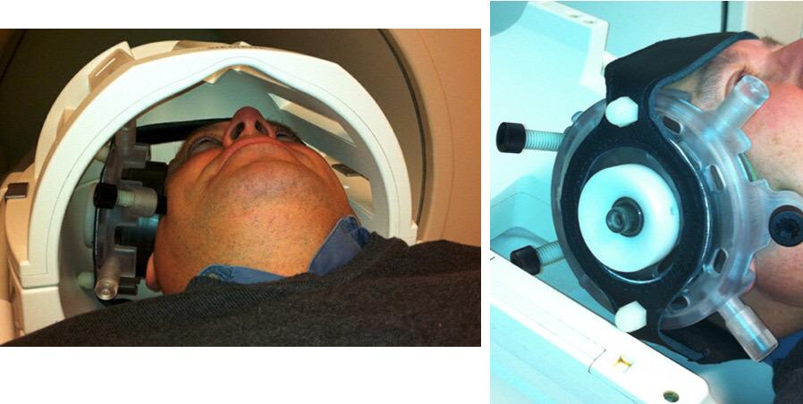 Триггер для сознания? 25-летнего парня вывели из комы, фокусируя ультразвук на небольшом участке в центре мозга - 4