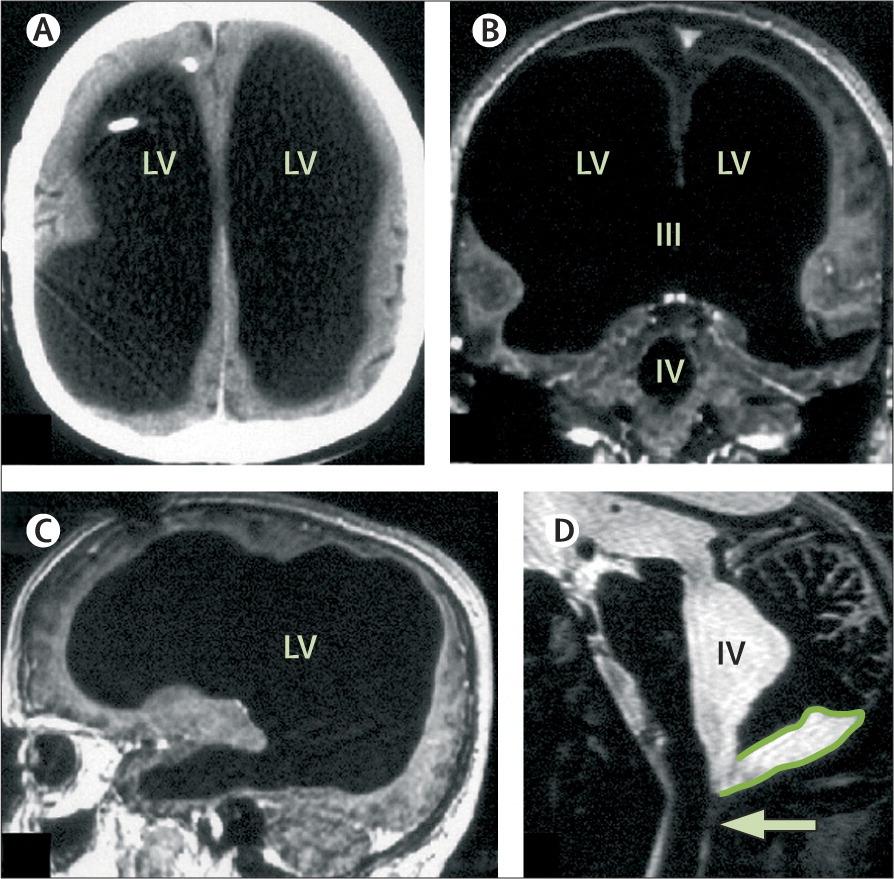 Триггер для сознания? 25-летнего парня вывели из комы, фокусируя ультразвук на небольшом участке в центре мозга - 5