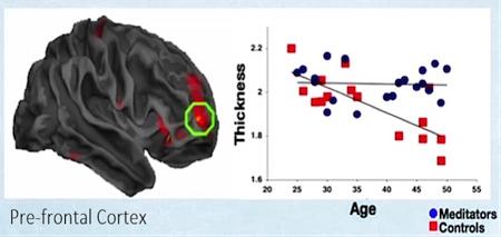 Нейропластичность: перестраиваем мозг - 4