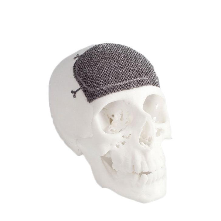 3D-печать из металла набирает обороты - 7