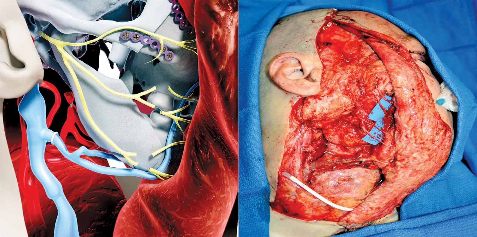 Умерла первая женщина, которой частично пересадили лицо - 2