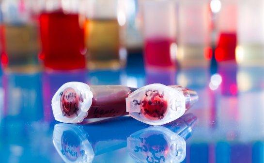 Младенческая кровь позволяет эффективно бороться с вирусами