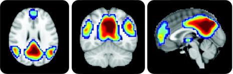 «Мы используем лишь 10% от всего мозга» и другие мифы - 2