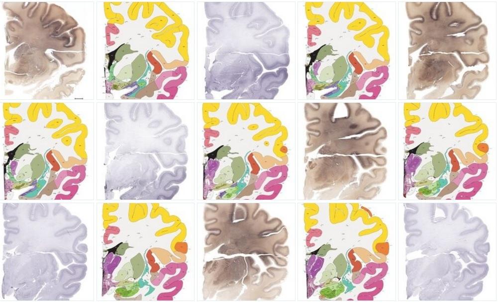 Впервые составлен полный атлас человеческого мозга с клеточным разрешением 1 мкм-пиксель - 1