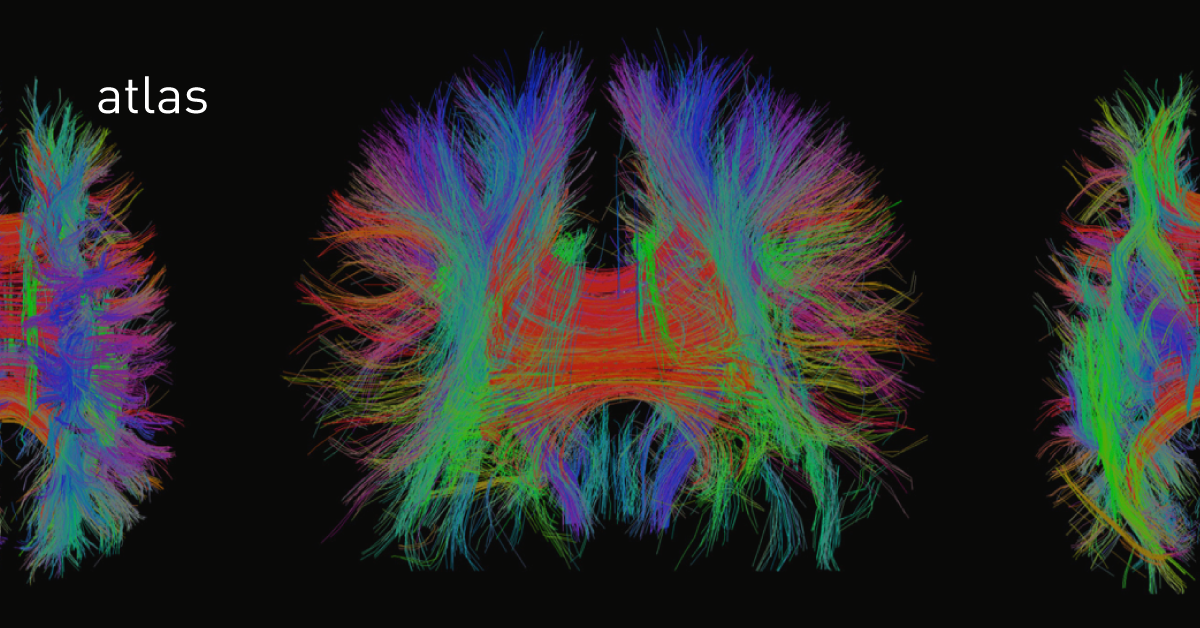 Нейромедиаторы, часть третья: опиоидные пептиды - 1