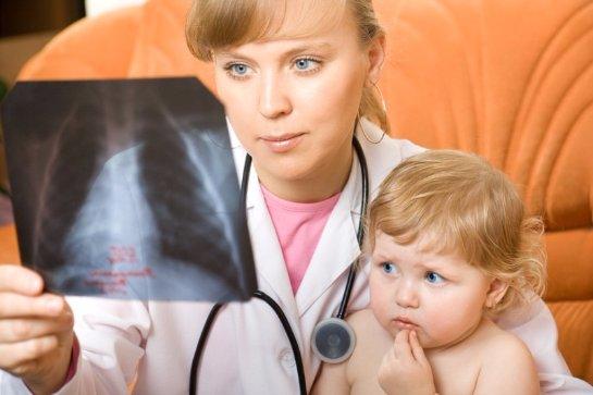 Дети из развивающихся стран очень много болеют пневмонией