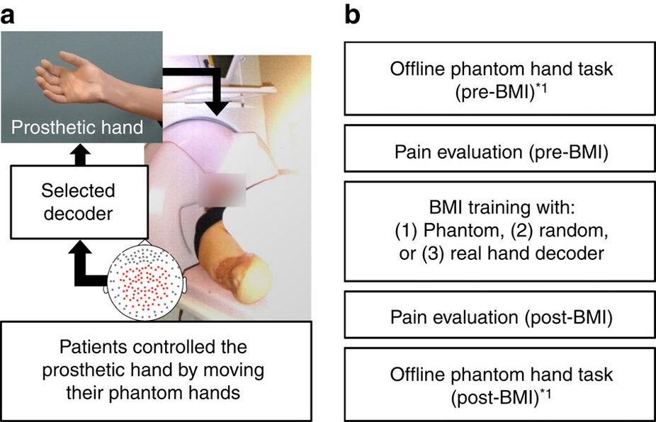 Исследователи нашли причину и возможное лечение фантомных болей - 2