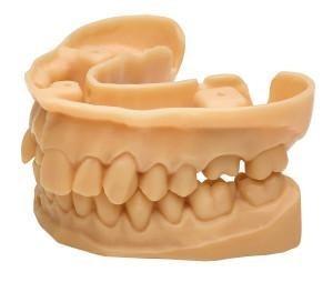 3D-печать в стоматологии на примере NextDent - 18