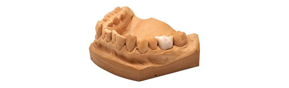 3D-печать в стоматологии на примере NextDent - 8