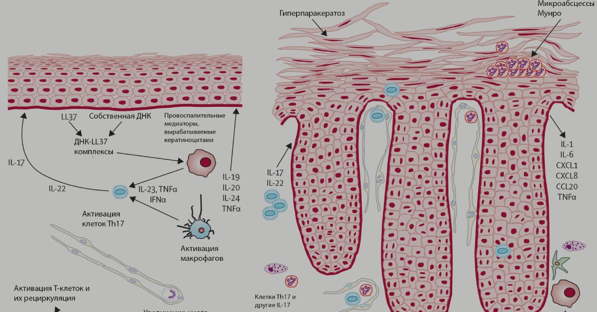 В журнале группы Nature вышла статья российских ученых о генетических факторах развития псориаза - 1