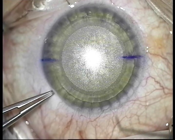 Телеметрия с лазера для коррекции зрения: полная операция с комментариями (не для слабонервных) - 13