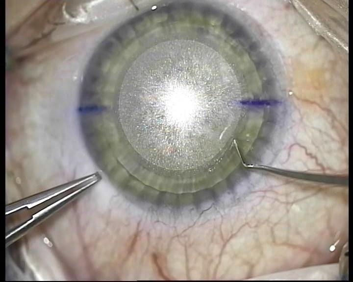 Телеметрия с лазера для коррекции зрения: полная операция с комментариями (не для слабонервных) - 14