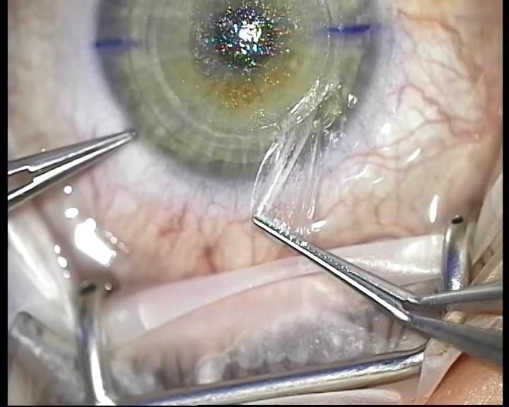 Телеметрия с лазера для коррекции зрения: полная операция с комментариями (не для слабонервных) - 19