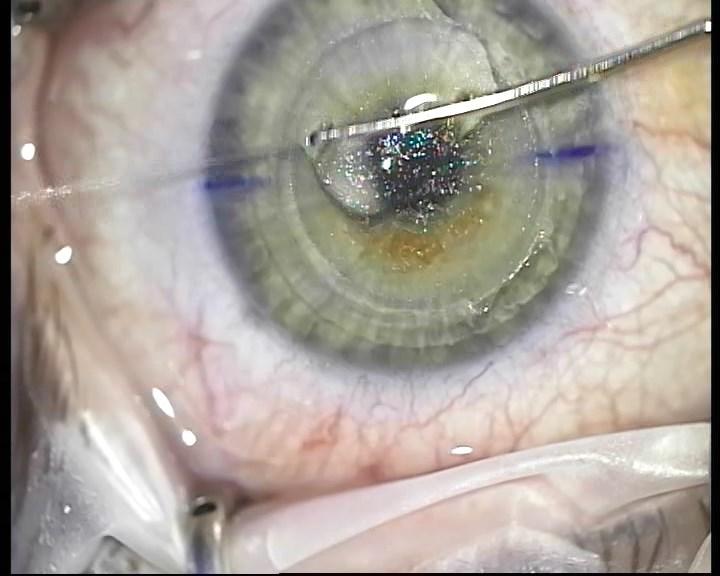 Телеметрия с лазера для коррекции зрения: полная операция с комментариями (не для слабонервных) - 20