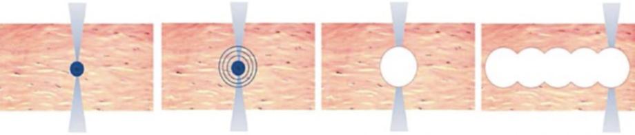 Телеметрия с лазера для коррекции зрения: полная операция с комментариями (не для слабонервных) - 3