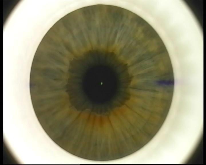 Телеметрия с лазера для коррекции зрения: полная операция с комментариями (не для слабонервных) - 7