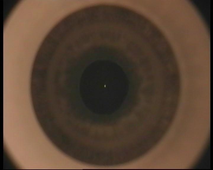 Телеметрия с лазера для коррекции зрения: полная операция с комментариями (не для слабонервных) - 9