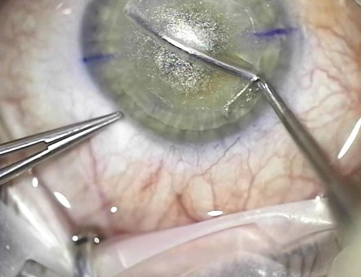 Телеметрия с лазера для коррекции зрения: полная операция с комментариями (не для слабонервных) - 1
