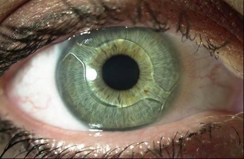 «Аугментация» глаза: что мы встраиваем в него сегодня, и под что ещё останется место - 1