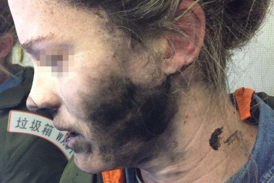 Беспроводные наушники взорвались на голове девушки во время авиаперелёта