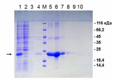 Генная инженерия бактерий: как достать из бактерий нужный нам белок - 11