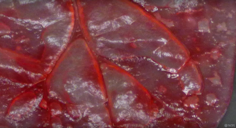 В листьях шпината вырастили клетки сердечной мышцы человека - 5