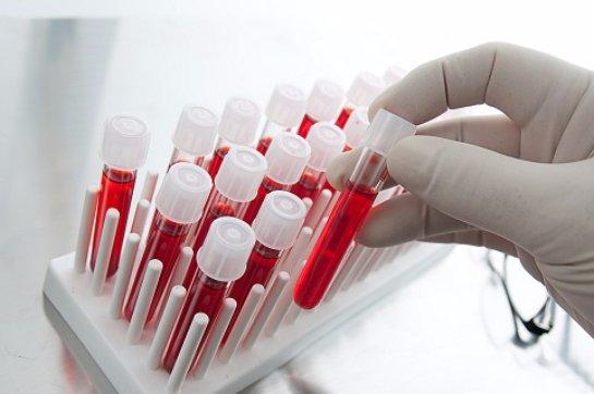 Метод борьбы с депрессией может определить анализ крови