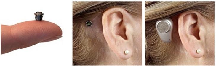 Oticon представили неимплантируемый слуховой аппарат для детей на базе технологии костной проводимости - 2