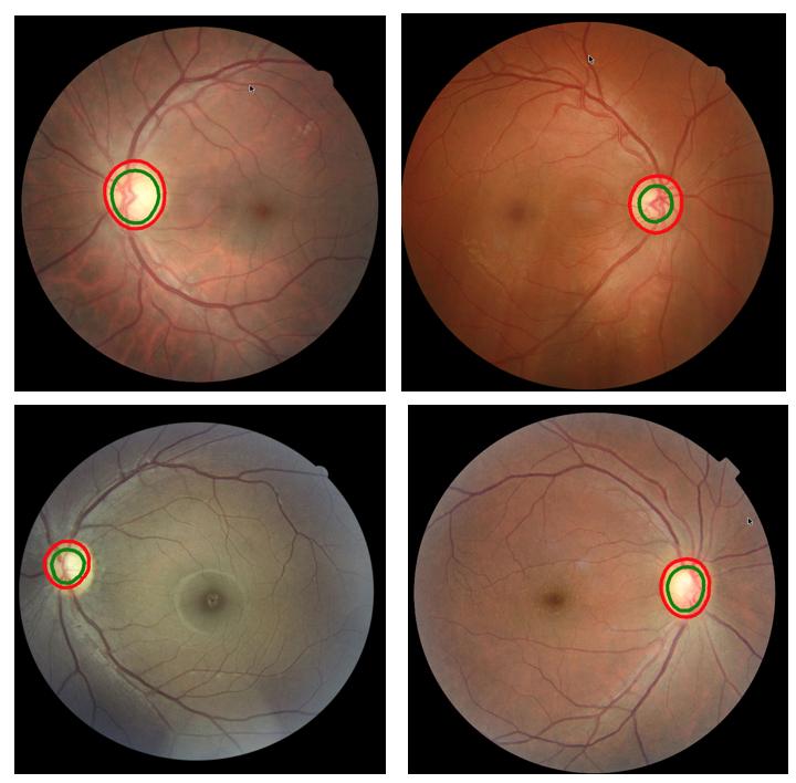 Глубокое обучение и нейронные сети позволяют идентифицировать диабетическую ретинопатию с точностью в 86% - 2