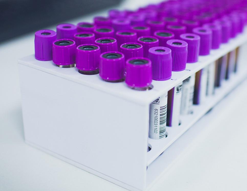 Клинический анализ крови: от светового микроскопа к гематологическим анализаторам - 5